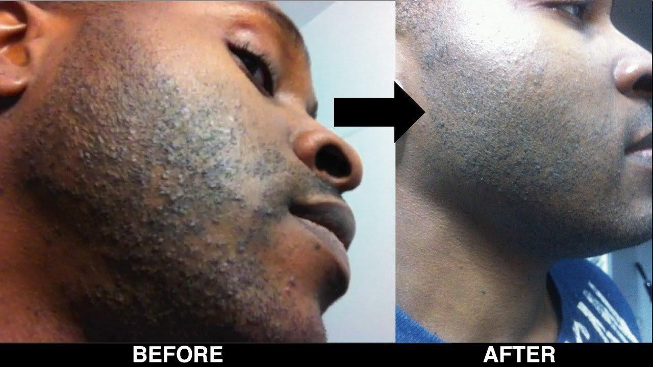 Facial bump removal